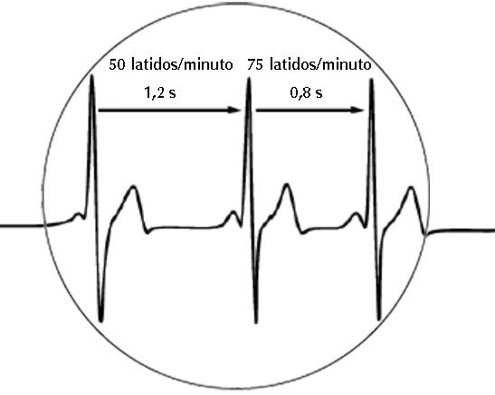 tecnica respiracion dirigidaTRD coaching coherencia cardiaca variabilidad