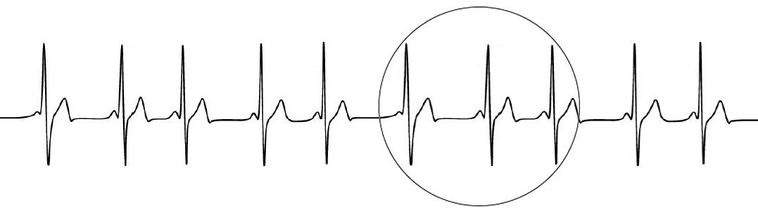 ECG TRD tecnica respiración dirigida coherencia cardiaca coaching variabilidad